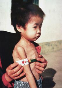 Nordkorea droht eine Hungersnot Eine Verkettung von Katastrophen und Planungsfehlern führt zur Ernährungslage von Kindern.